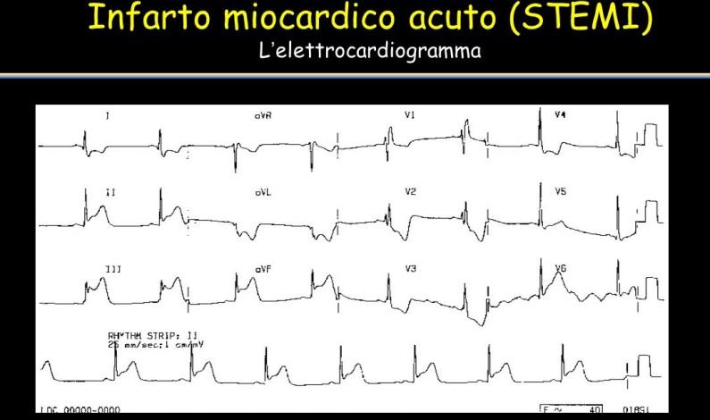La terapia dell'infarto acuto: tappe di una storia d'eccellenza italiana.